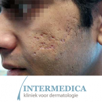 Proefpersonen-acne-littekens